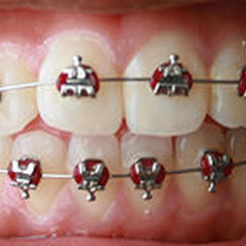 Ortodoncia: Aiara Centro Dental de Aiara Centro Dental