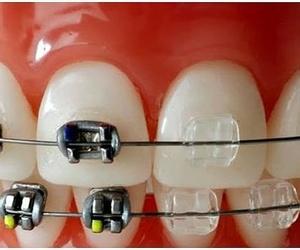 Ortodoncia Clínica dental Tárrega - Guissona