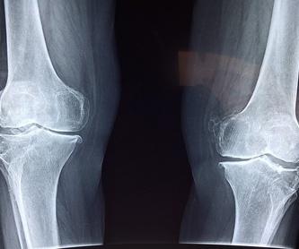 Contracturas musculares: Especialidades de Dr. Torre Alonso, Reumatólogo