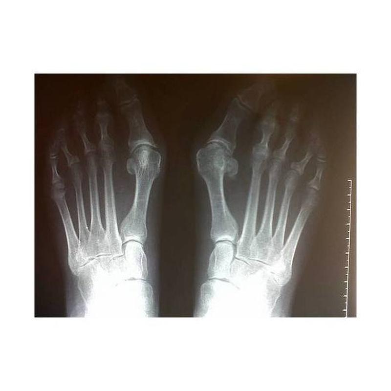 Cirugías: Tratamientos  de Alicia Blasco Gutiérrez