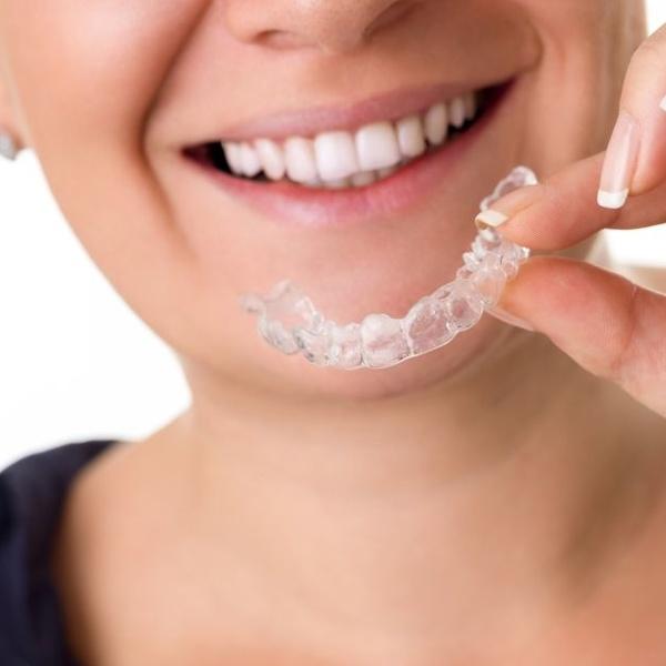 El tratamiento de ortodoncia con Invisalign