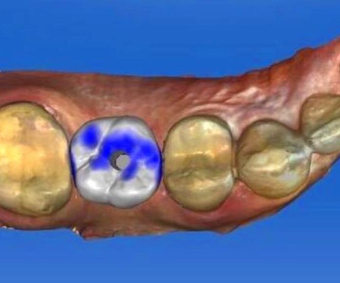 Implante unitario