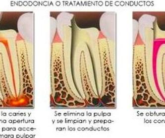 Blanqueamiento: Tratamientos de Hospident Clínica Dental