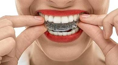El problema de rechinar o apretar los dientes crece, sobre todo entre jóvenes preadolescentes.