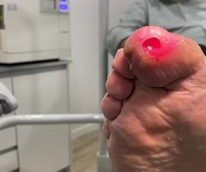 Aplicación de láser en úlcera de pie diabético