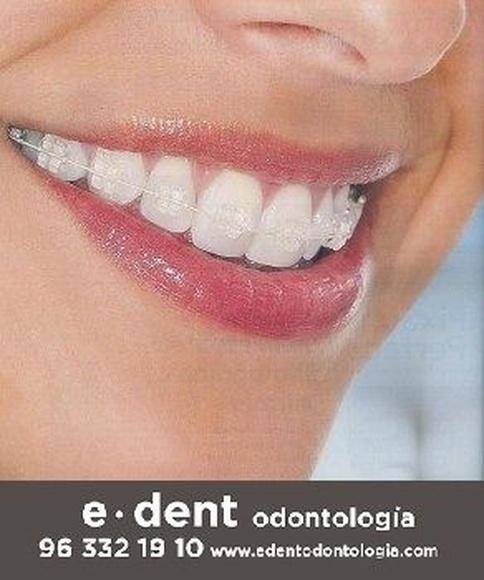 Ortodoncia en Valencia con brackets de zafiro: Tratamientos Dentales de e·dent odontología