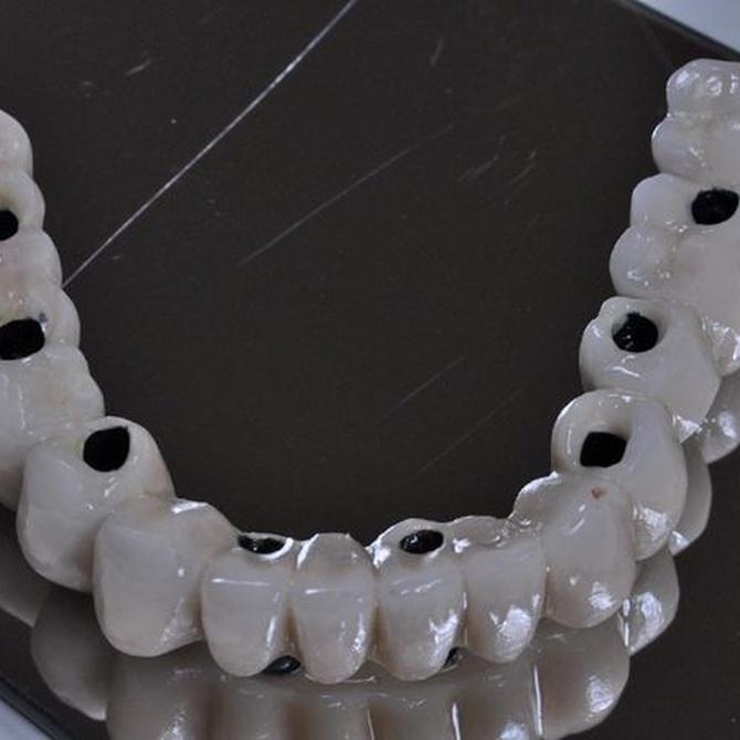 ¿Qué son los implantes dentales y cuáles son sus beneficios?