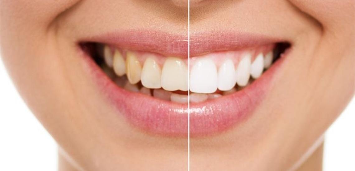Clínicas dentales en Gava