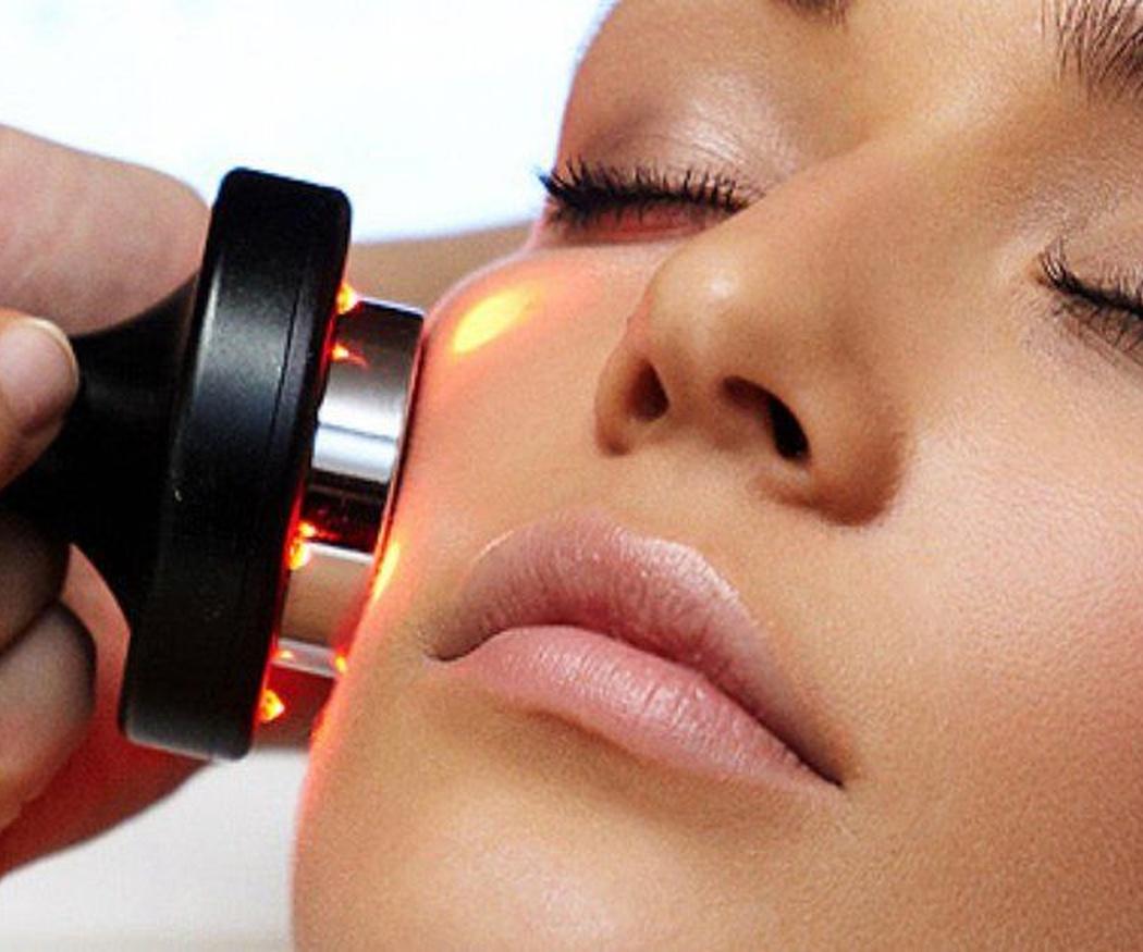 ¿Conoces la bioestimulación facial?