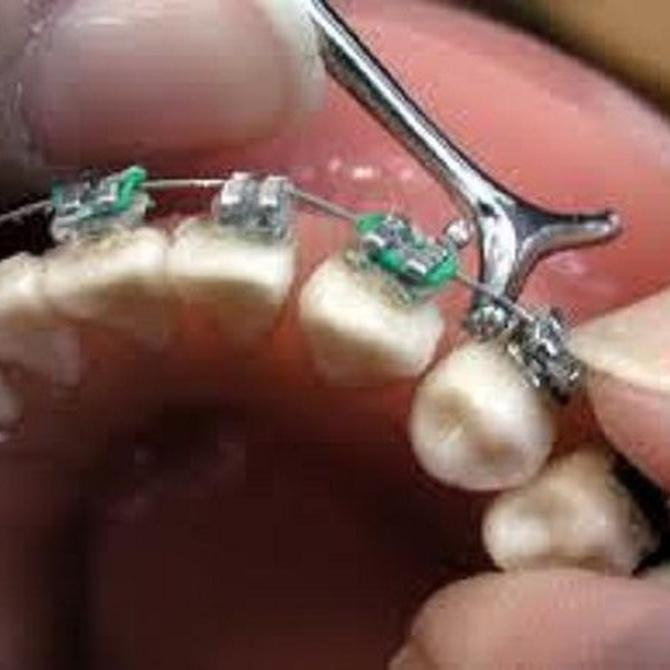 ¿Cuál es la duración media de un tratamiento de ortodoncia?