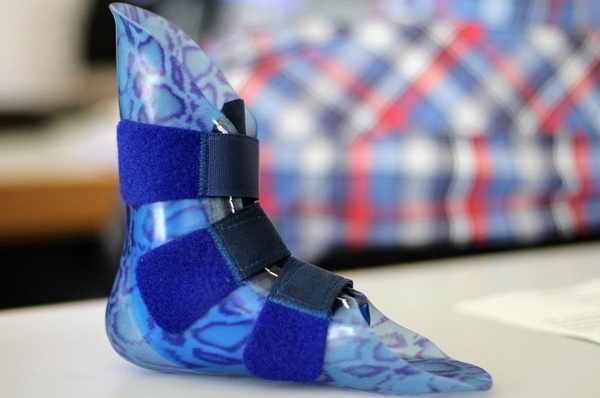 Desarrollan un material biocerámico celular para prótesis óseas