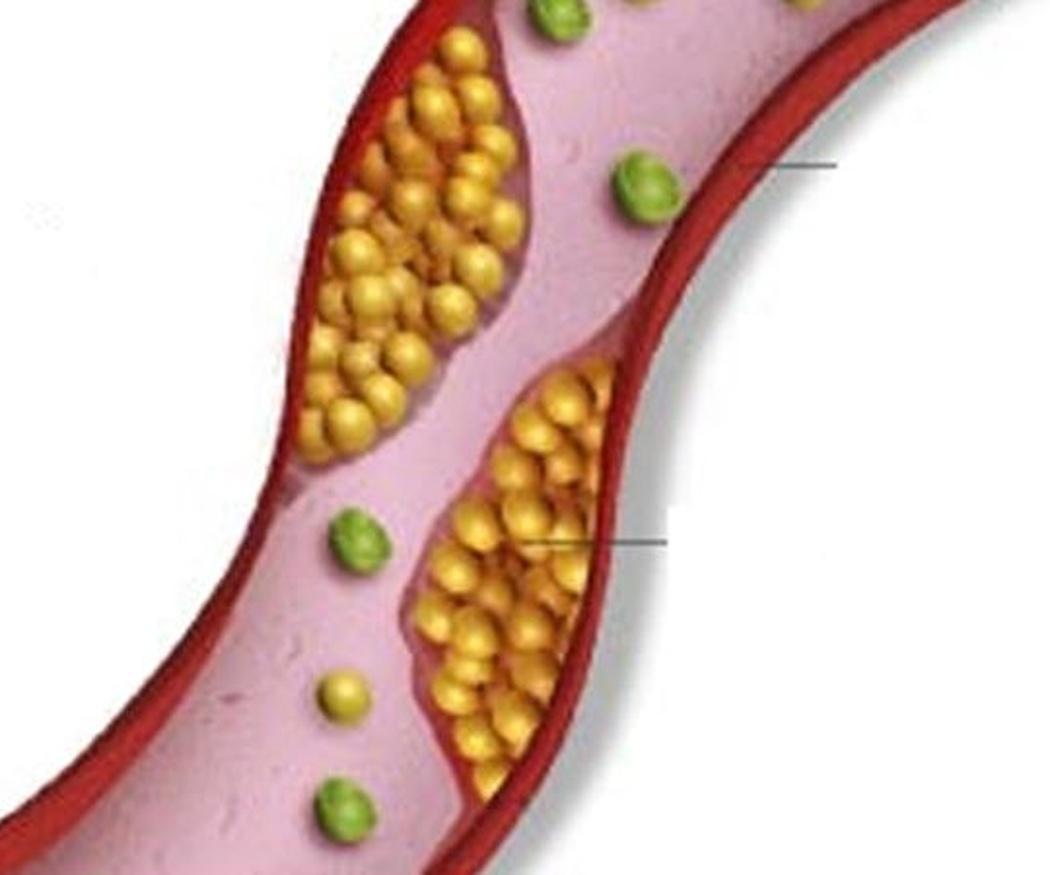 Riesgos de tener niveles altos de colesterol en sangre