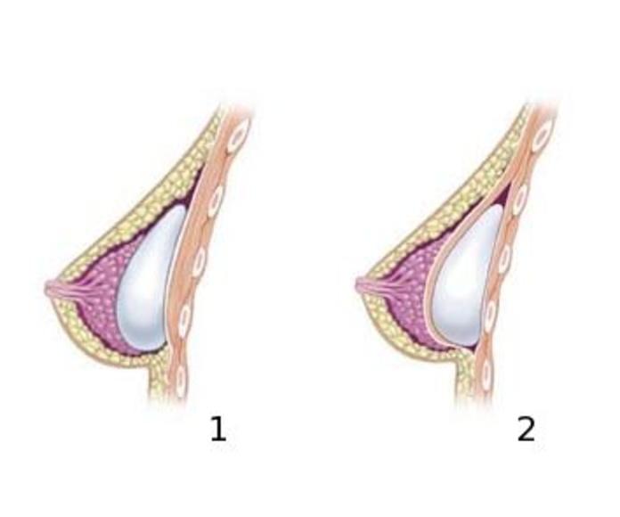 Problemas congénitos mamarios: Servicios de Clínica Dr. Javier Cerqueiro Cirugía Plástica