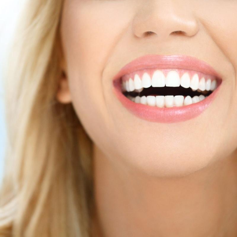 Blanqueamientos dentales: Servicios dentales de Clínica Dental Aliseda