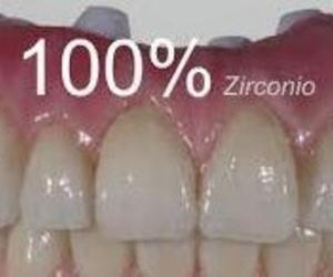 Todos los productos y servicios de Protésicos dentales: Calidad Tecnident 98, S.L.