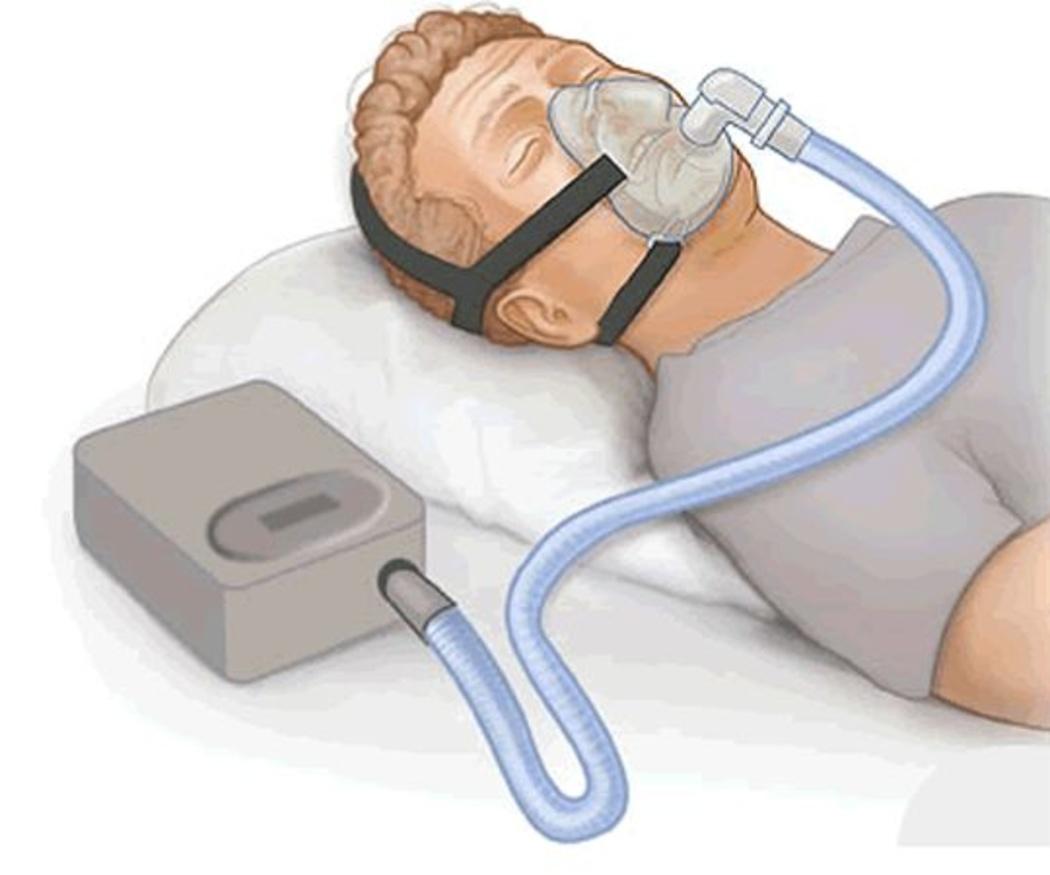 Dispositivos de avance especiales para evitar la apnea del sueño