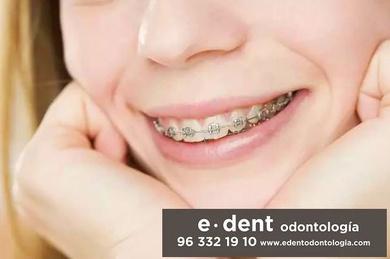 Que alimentos debes evitar durante la ortodoncia