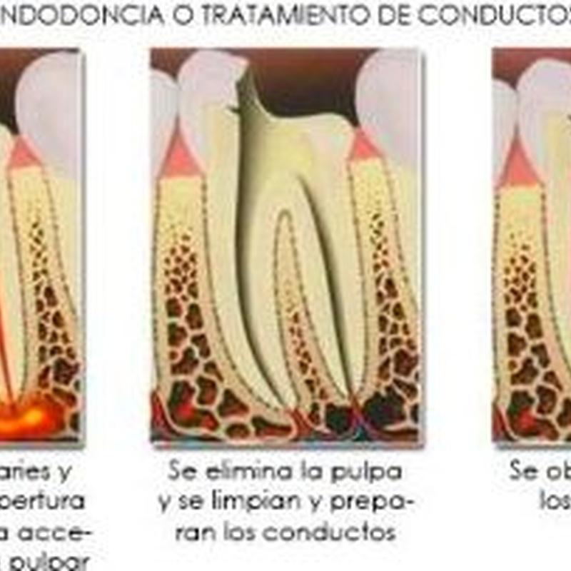 Endodóncia o tratamiento de conductos: Tratamientos de Hospident Clínica Dental