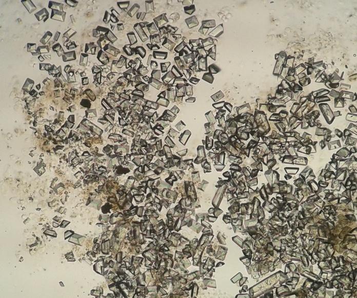 Cristales de estruvita