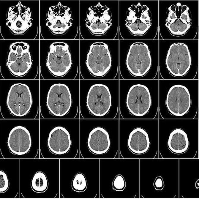 ¿Qué es la radiología y para qué sirve?