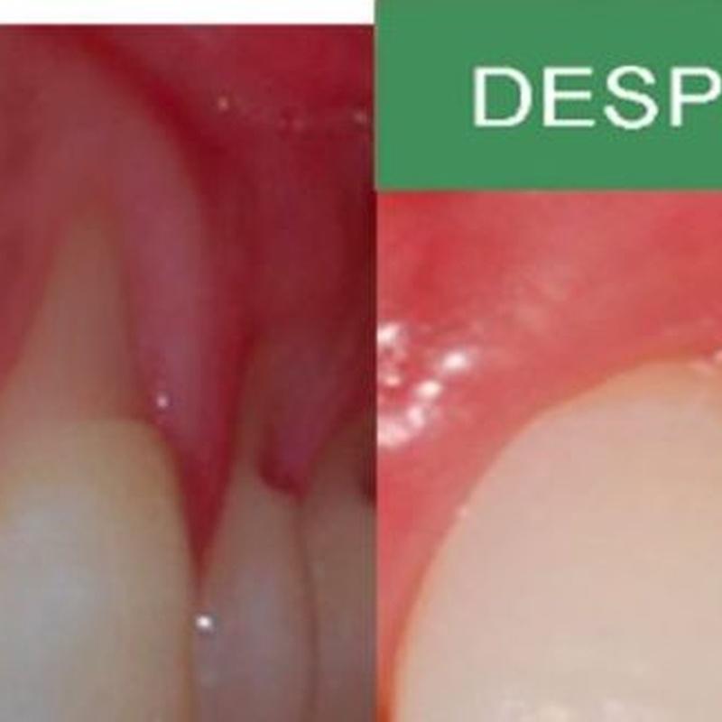 Injertos de encías: Servicios de MAG Clínica Estético Dental