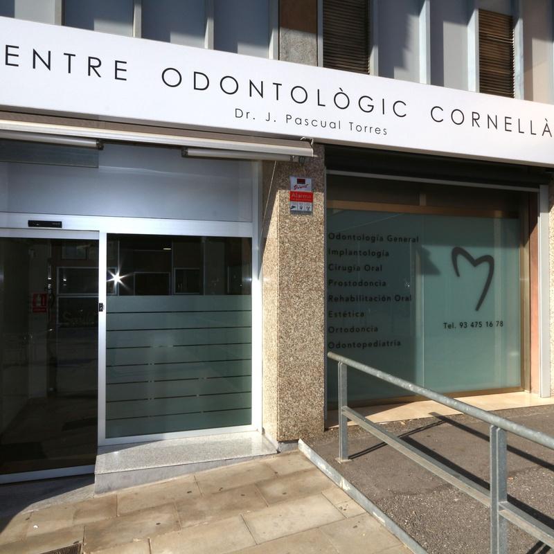 Escáner intraoral: Tratamientos Dentales de Centre Odontologic Cornella