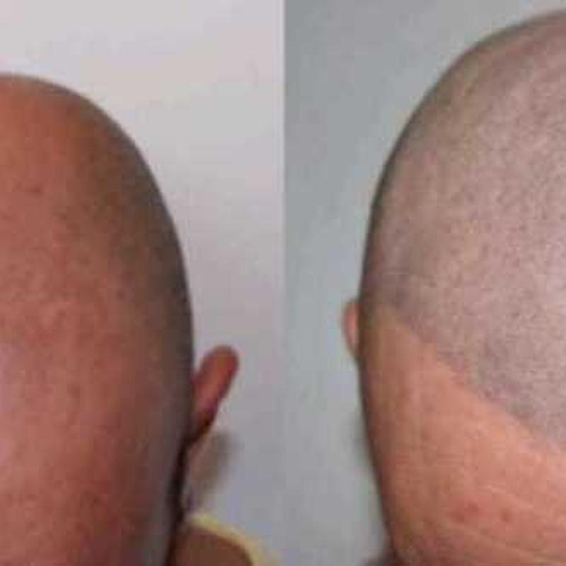 Micropigmentación Capilar  (Tricopigmentación): Servicios de C. López
