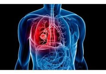Enfermos con patología pulmonar