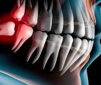 ENDODONCIA: Tratamientos of Clínica Dental Santa Eulàlia