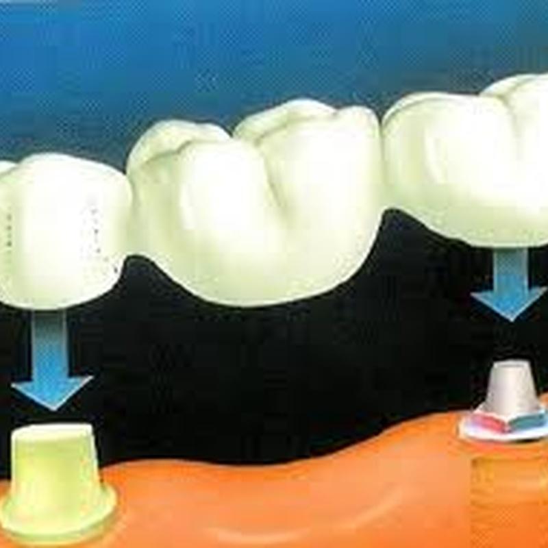 Prótesis Fijas: Tratamientos de Dental Icaria, S.L.