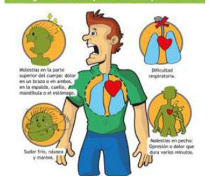 Síntomas de un ataque al corazón