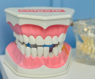 Implantes: Servicios de Clínica Dental Valloc