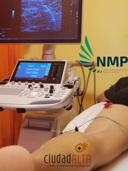 Neuromodulación Percutánea Ecoguiada: Tratamientos y Terapias de Ciudad Alta