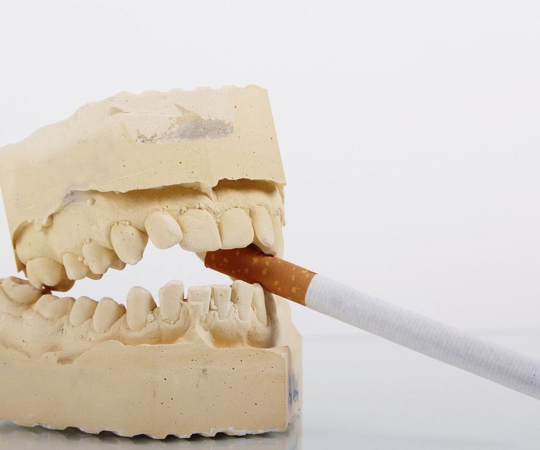 El tabaco y los implantes dentales: enemigos mortales