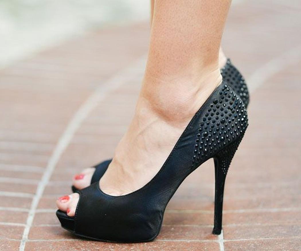 Lesiones en el pie producidas por los zapatos de tacón