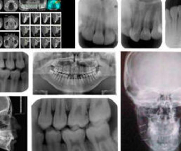 Radiología digital.