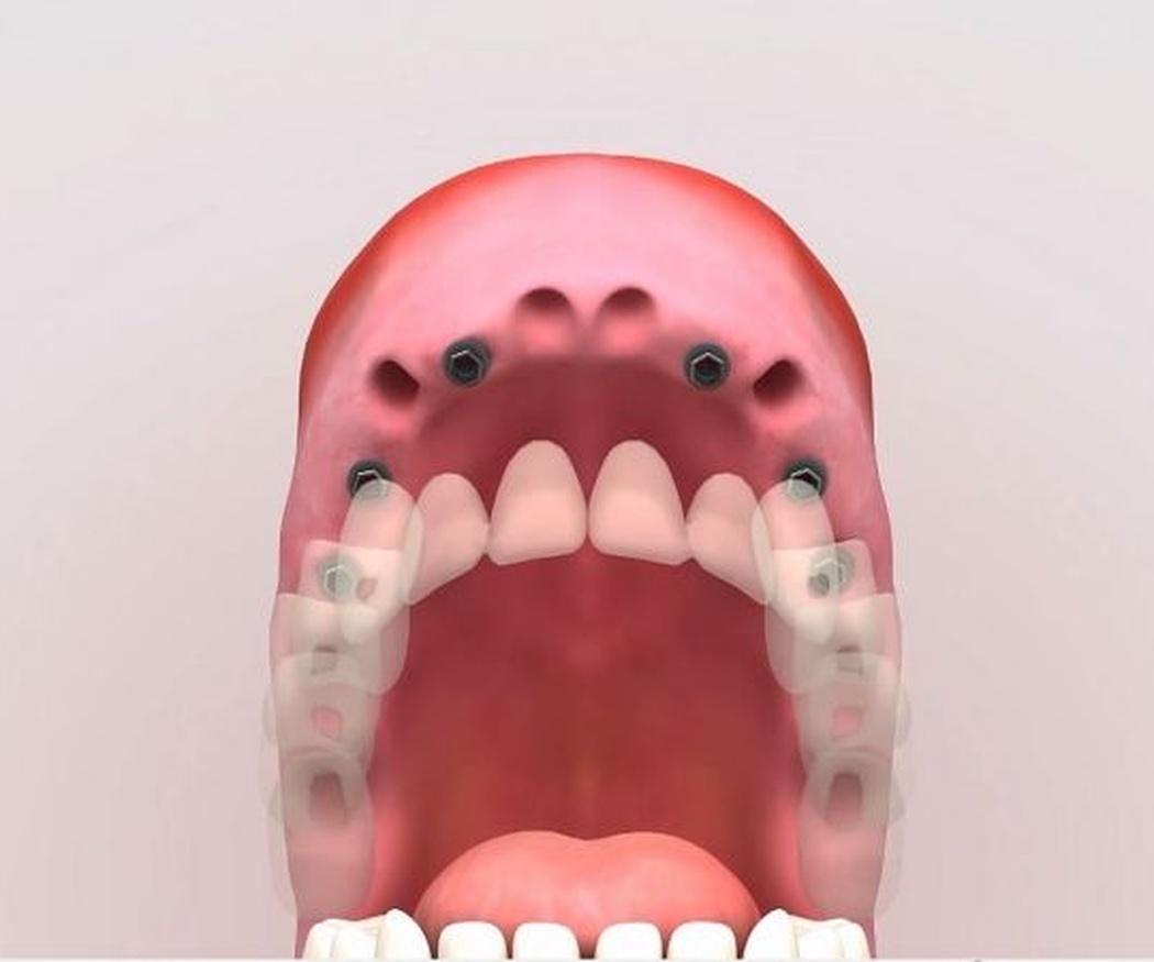 ¿Por qué los implantes son uno de los mejores tratamientos de estética dental?