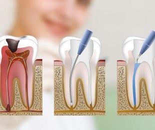 Limpieza, empastes y endodoncias