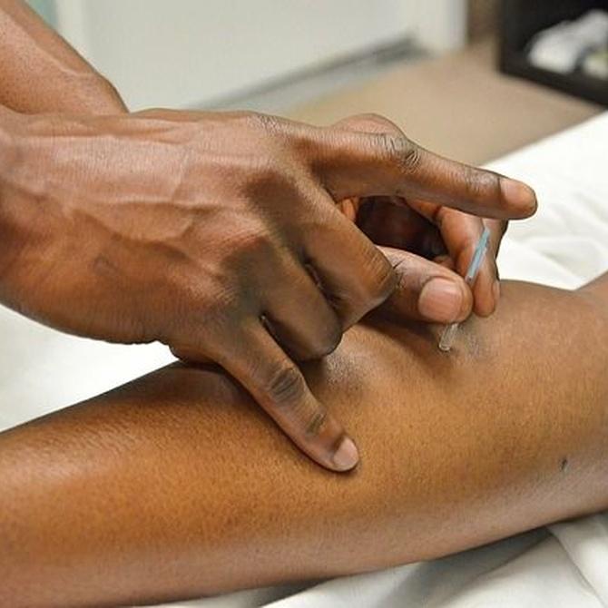 Mejorar tus niveles de estrés con la acupuntura y la osteopatía