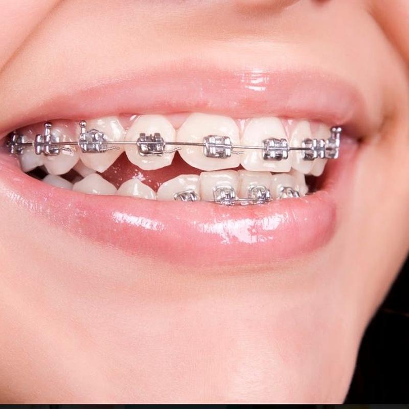 Ortodoncia: Servicios de CEO Clínica Dental