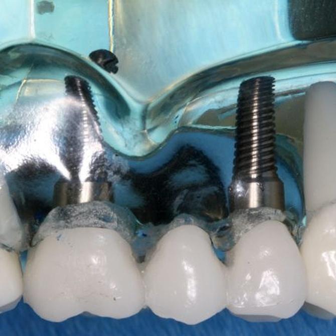 Ventajas del tratamiento de implantes dentales