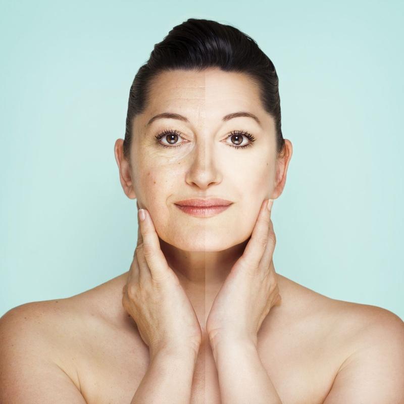 Tratamiento de manchas: Tratamientos de estética de Clínica Estética Loveliness