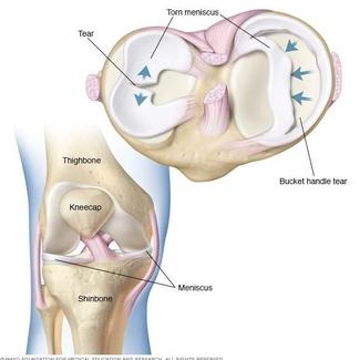 Rehabilitación rotura de menisco
