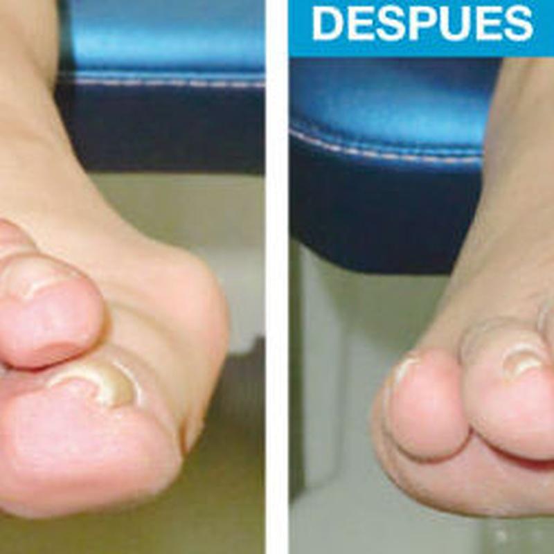 Problemas de dedos Menores: Cirugía del Pie de Clínica Podológica José Mª Pe Duarte