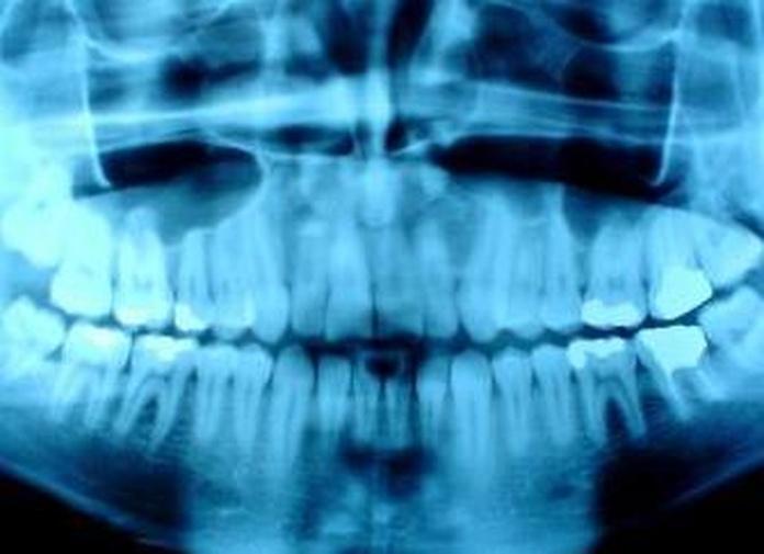 Rayos X digital: Servicios de Clínica Dental El Carmen