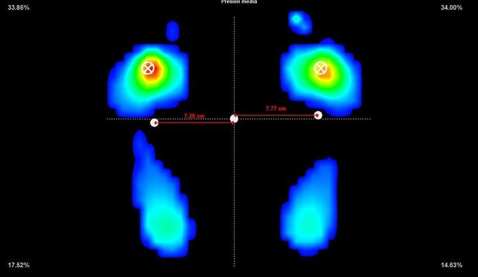 Presiones patologicas en articulaciones metatarsofalangicas centrales