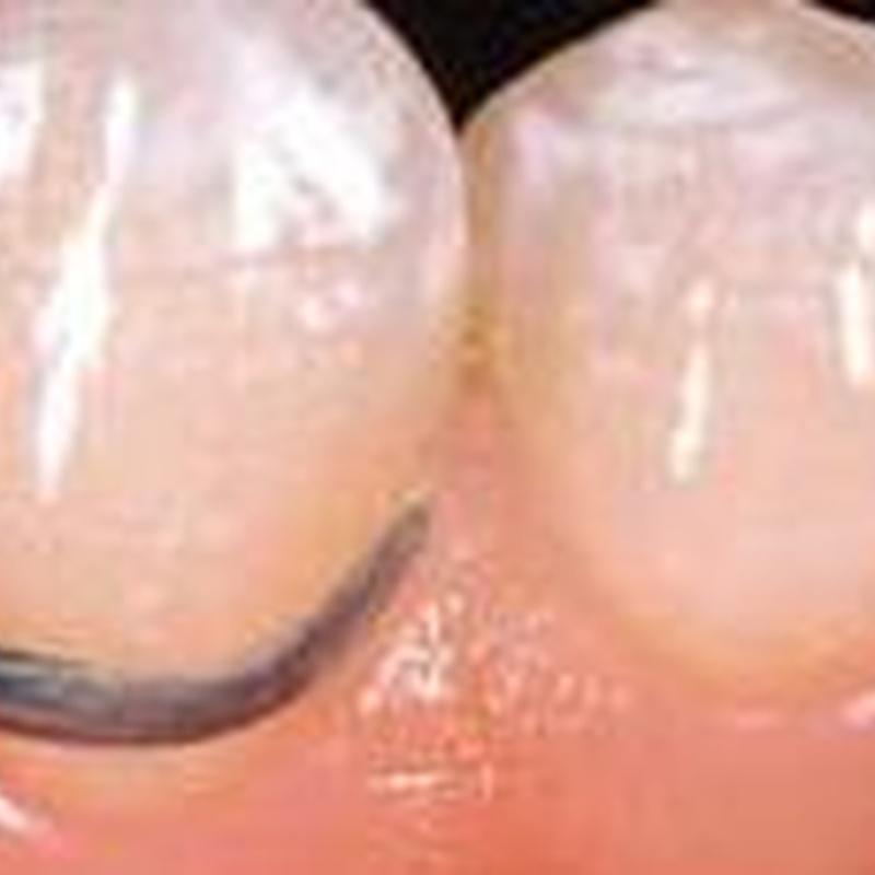 Periodoncia: Servicios odontológicos de Clínica Dental Erniobea