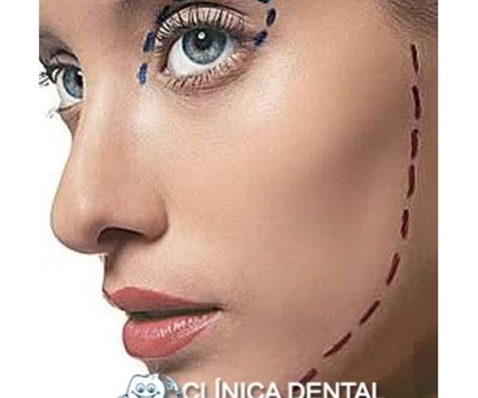 Lifting: Tratamientos de Clínica Dental Virgen del Pilar