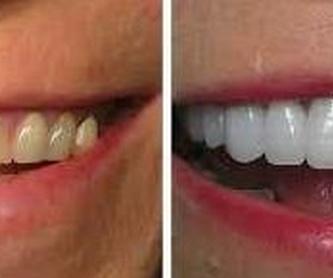 Prótesis Fijas de Porcelana o de zirconio: Servicios de Clínica Dental Dra. Belkys Hernández Cabrera