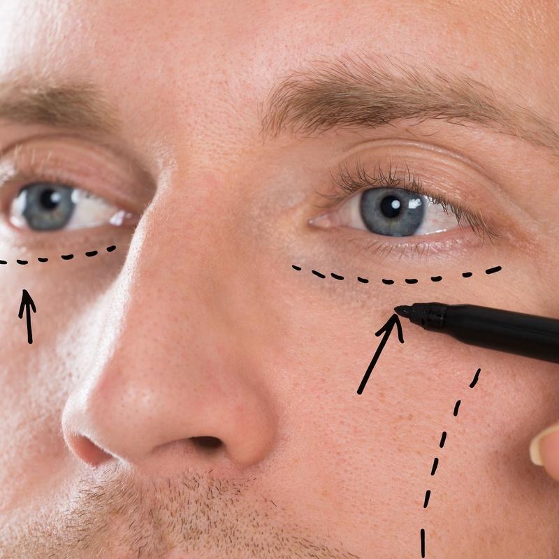 Corrección de arrugas con infiltraciones: Tratamientos y dietas de Clínica Rubigar